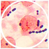 uti-infections